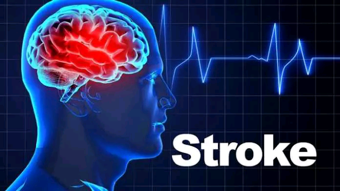 Vegans and Vegeterians have more chances of Stroke