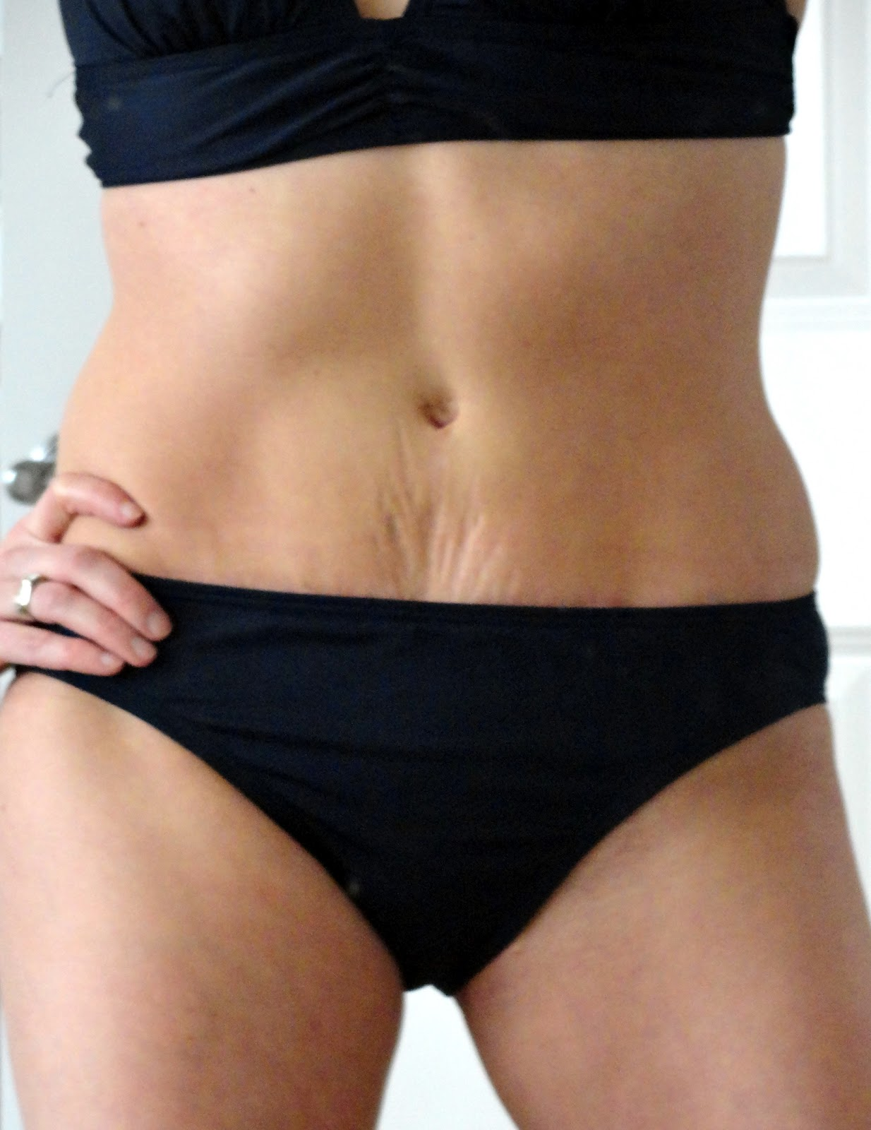 6 weeks to a bikini body or why I had a tummy tuck instead ...