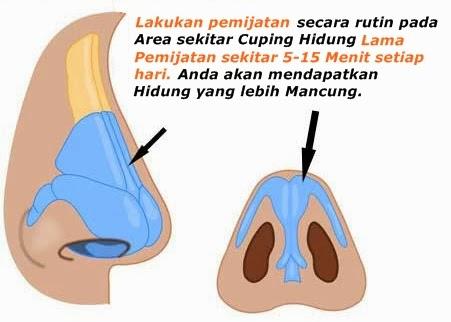 Tips memancungkan hidung dengan mudah