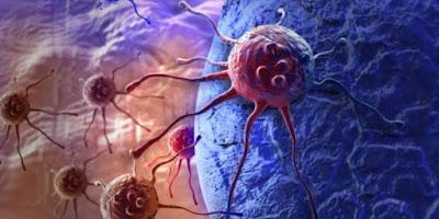 Trovato gene migliora trapianto nei bambini con leucemia