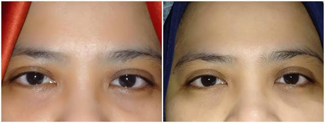 review elsheskin 5in1 eyessential