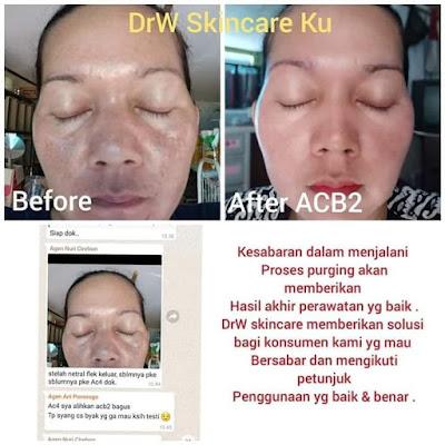 paket acne jerawat drw skincare