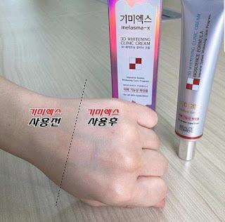 kem melasma 3d whitening clinic cream
