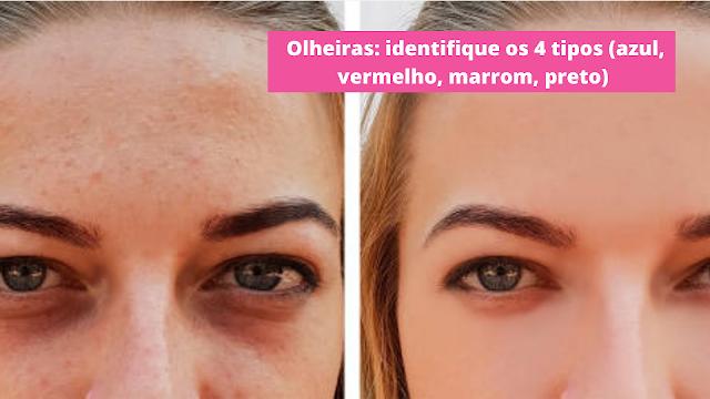 Não se fala muito em olheiras vermelhas, mas por que se formam?