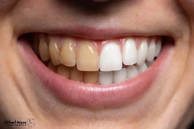 تبييض الأسنان في المنزل خلال دقيقتين فقط.