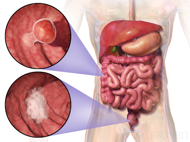 kanker usus besar, cancer colon