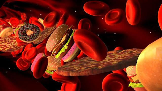 اعراض ارتفاع الدهون في الدم