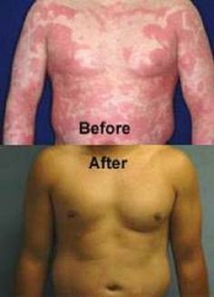 Revitol Canada Proven Beauty Products Revitol Dermasis Psoriasis