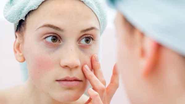 Cara Mengobati Penyakit Lupus