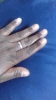 Controlando o vício de roer unhas