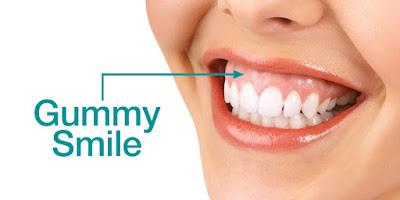 Biaya Pemotongan Gusi di Solo untuk Menghilangkan Gummy Smile