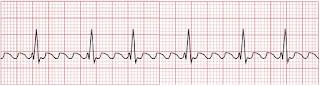 An ECG of atrial flutter.