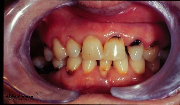 تسوس الأسنان الأمامية