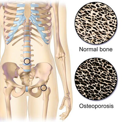 Osteoporosis causes