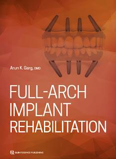 Full-Arch Implant Rehabilitation by Arun Garg