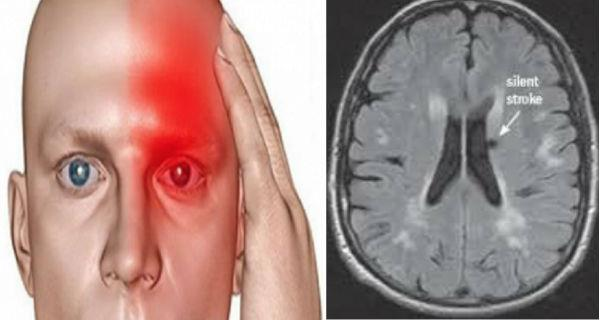 10 Dangerous Symptom Of A Silent Stroke And That Another. Penance Signs. Farmers Market Signs Of Stroke. Male Signs. Mathematical Signs. Adjustment Disorder Signs. Bls Signs. Rottweiler Signs. Crop Circle Signs Of Stroke