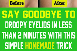 Simple Homemade Trick for cleanser Droopy Eyelids