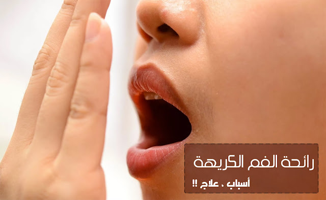 تخلص من رائحة الفم الكريهة بطرق طبيعية ، اسباب وعلاج الرائحة