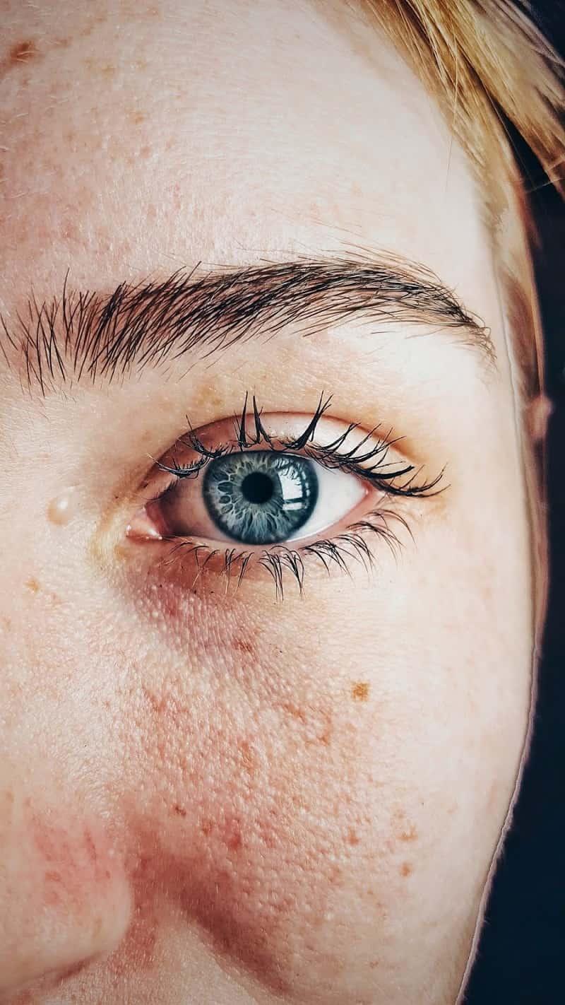 الشفاء من الأمراض الجلدية