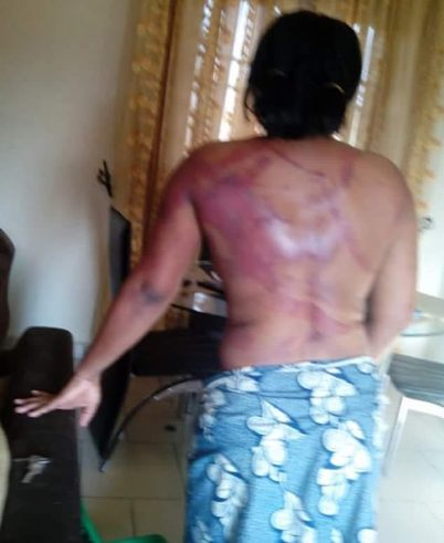 Woman cries out after she was brutally beaten by husband in Port Harcourt