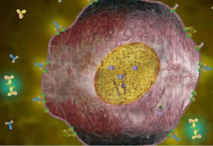 Resultados da biópsia câncer de mama HER2-positivo