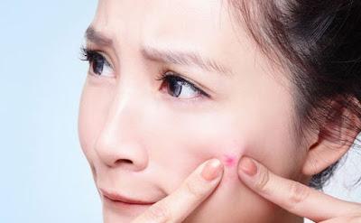8 Penyebab Munculnya Jerawat Pada Kulit Wajah