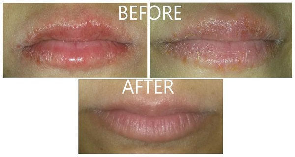 simple tricks to say goodbye to chapped lips forever | the healthy, Skeleton