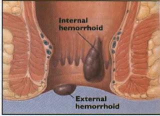 Bahaya Ambeien Hemoroid Stadium 3, Artikel Obat Tradisional Untuk Wasir Eksternal, Bagaimana Cara Alami Mengobati Wasir Yang Sudah Keluar