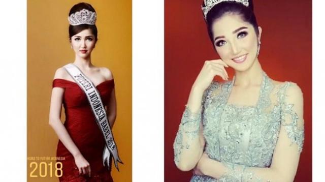 Sonia Fergina Citra | Wanita Dari Bangka Belitung Ini Dinobatkan sebagai Puteri Indonesia 2018