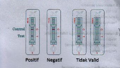 Rapid Test HIV