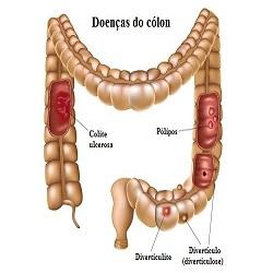 Câncer de cólon, prevenir é a melhor maneira de tratamento