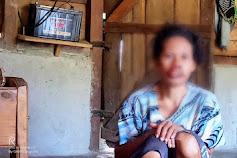 'Siapapun Tolong Bantu Mama Saya Berobat', Kisah Pilu Perjuangan Janda di Matim Melawan Kanker Mulut yang Semula Disangka Sariawan