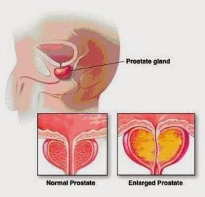 Infectii urinare joase coli prostata