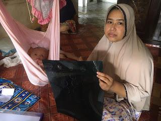 Bayi Asal Aceh Timur Penderita Hidrosefalus Butuh Uluran Tangan Dermawan