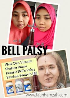 suplemen-shaklee-bantu-bell-palsy