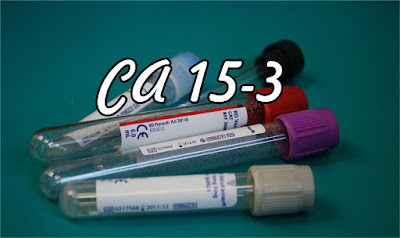 CA 15-3