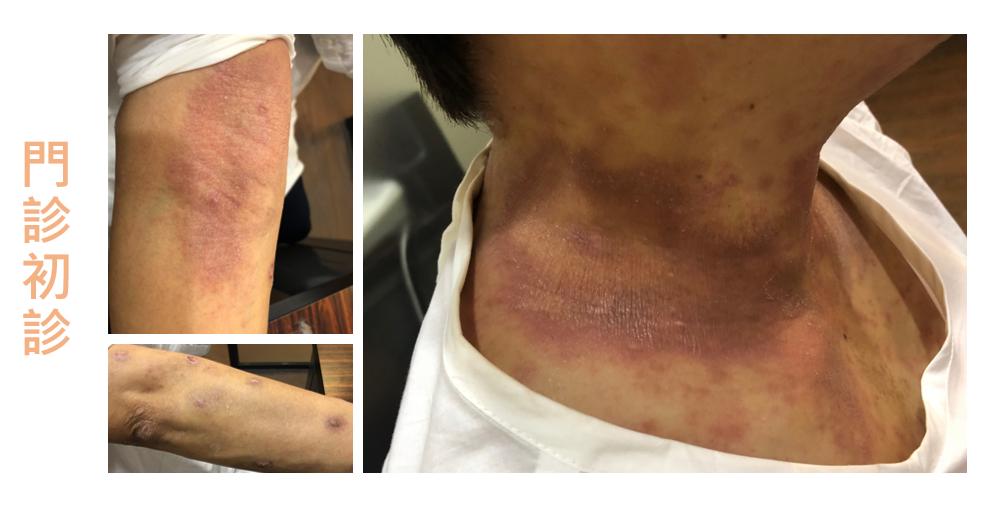患者身上同時有異位性皮膚炎(Atopic dermatitis)、結節性癢疹(Prurigo Nodularis)、神經性皮炎(Neurodermatitis)表現。這些 ...