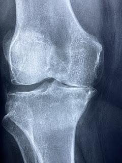 Chores with Arthritis Pain - bestaiding.com
