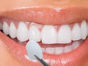 lentes-de-contato-dental3 - DIFERENÇA ENTRE PORCELANA E RESINA. 1d7d86cf7f