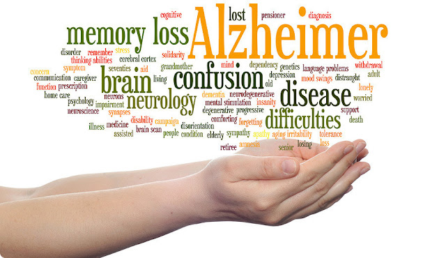 What should you know about Alzheimer's disease?