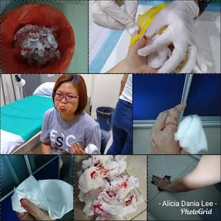 kemalangan di dapur; terpotong jari; terhiris jari; dapur; Alicia dania lee