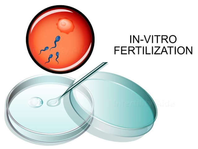 Infertility Treatment Cost In Jaipur