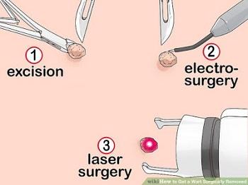 Operasi Kutil Kelamn