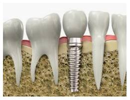 Bioproduct for dental implants