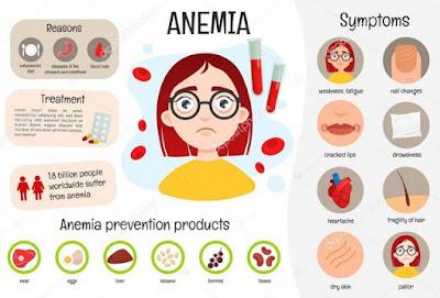 Anemia - Gejala, Penyebab dan Cara Mengobati