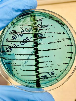 Ágar Hektoen com crescimento de (HE) Salmonella enterica