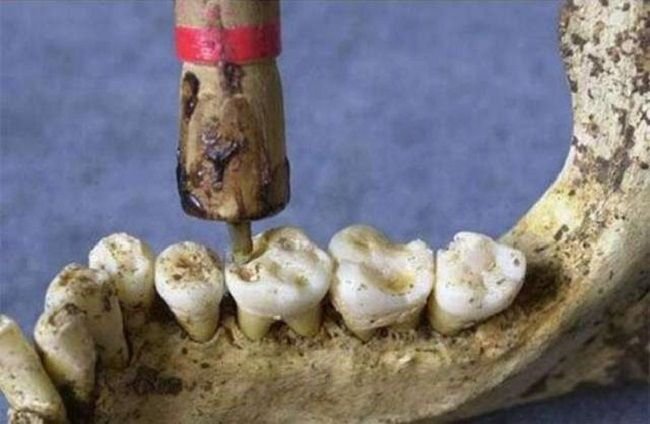 Indus-Valley-Dental-Drill