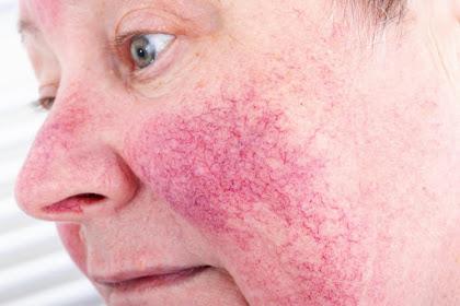 Waspadai Penyakit Rosacea, Peradangan Kulit yang Menimbulkan Sensasi Terbakar