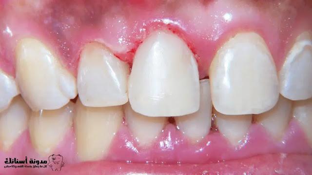 كيفية منع تسوس الأسنان.بطرق طبيعية.