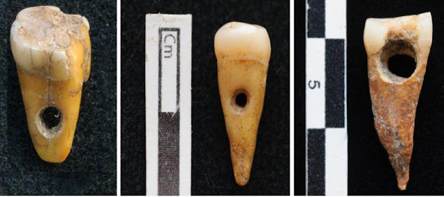 Jewellery made from 'human teeth' found in Catalhoyuk
